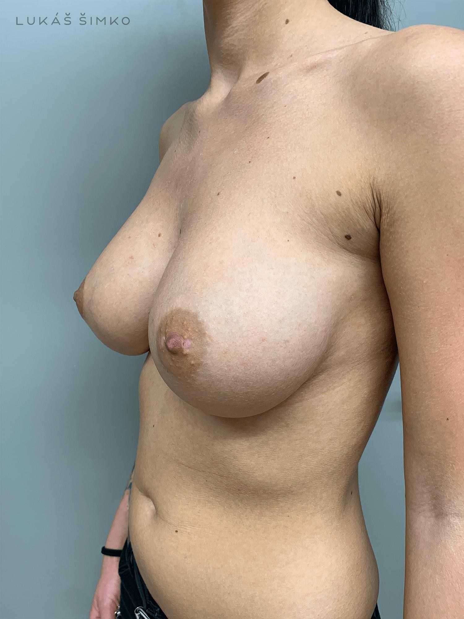 Po operácii