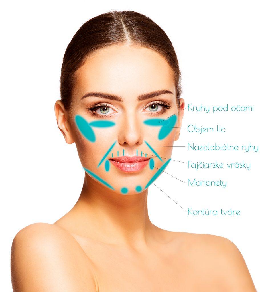 Výplne vrások kyselinou hyalúronovou na tvári